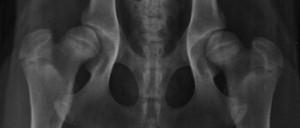 displasia da anca, Um passo gigante